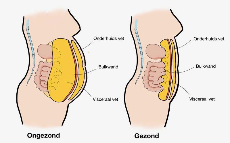 Onderhuidsvet en orgaanvet